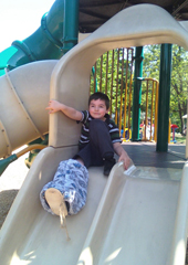 Nicholas, is 5 years old and was diagnosed with Fibular Hemimelia